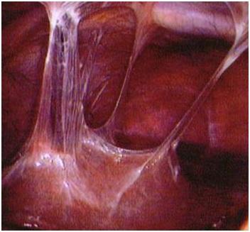 Туберкулез матки – это гарантированное бесплодие или патология излечима?