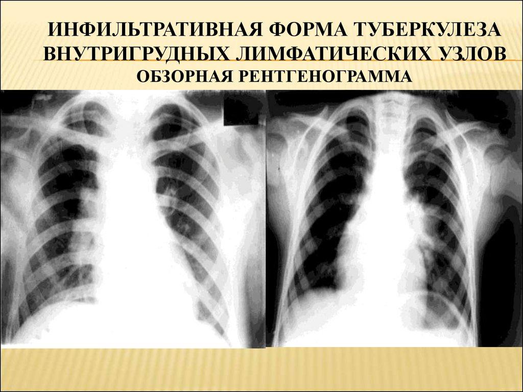Как проявляется туберкулез внутригрудных лимфатических узлов?