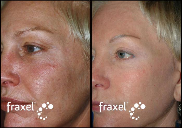 фото до и после фраксель