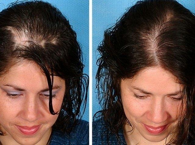 мезотерапия головы - фото до и после