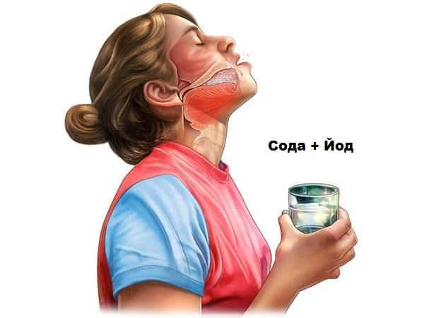 Лечение острого фарингита у детей и взрослых
