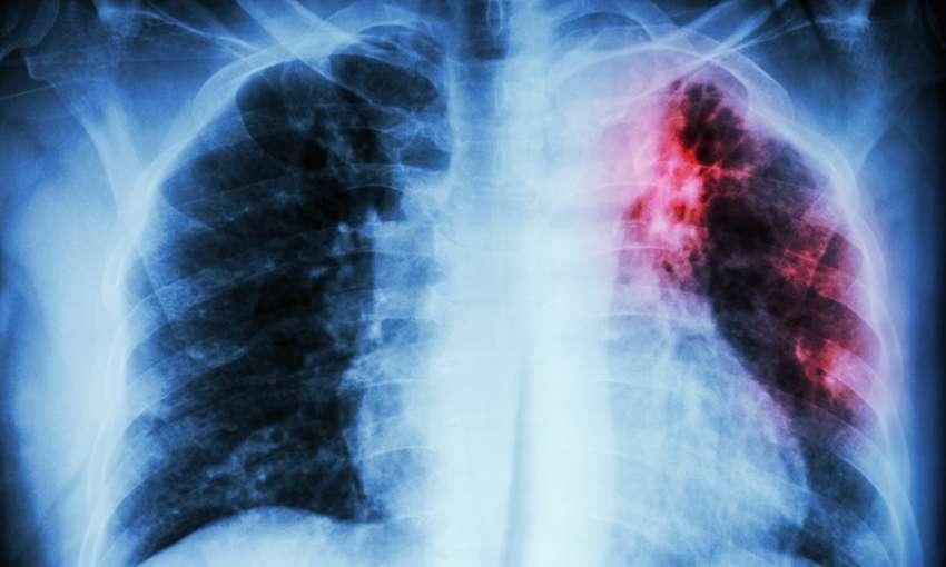 Группы риска по туберкулезу социальные факторы и значение иммунитета