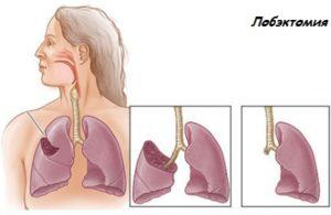 Основные разновидности резекции легкого при туберкулезе