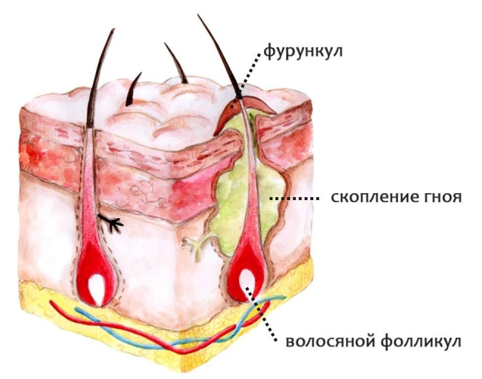 Фурункул в носу