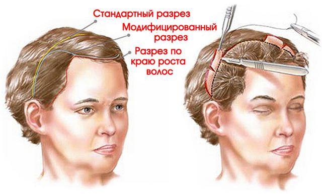 операциооные методы подтяжки лба