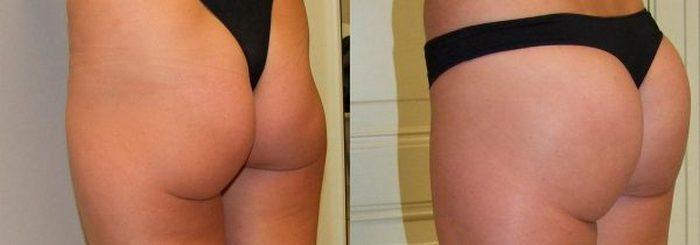 фото до и после подтяжки ягодиц операционным методом