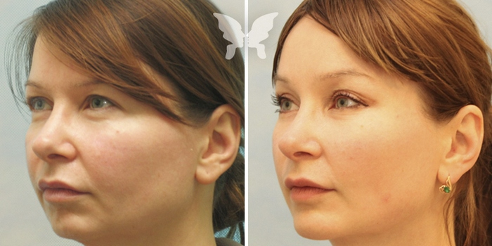 фото до и после подтяжки средней части лица