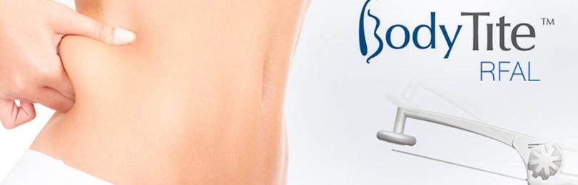 Радиочастотная липосакция Body Tite (Боди Тайт). Фото до и после процедуры
