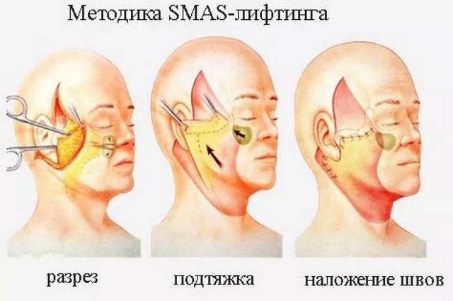 разрезы при операции смас лифтинга лица