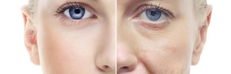 Описание операции чек-лифтинга лица с фото до и после