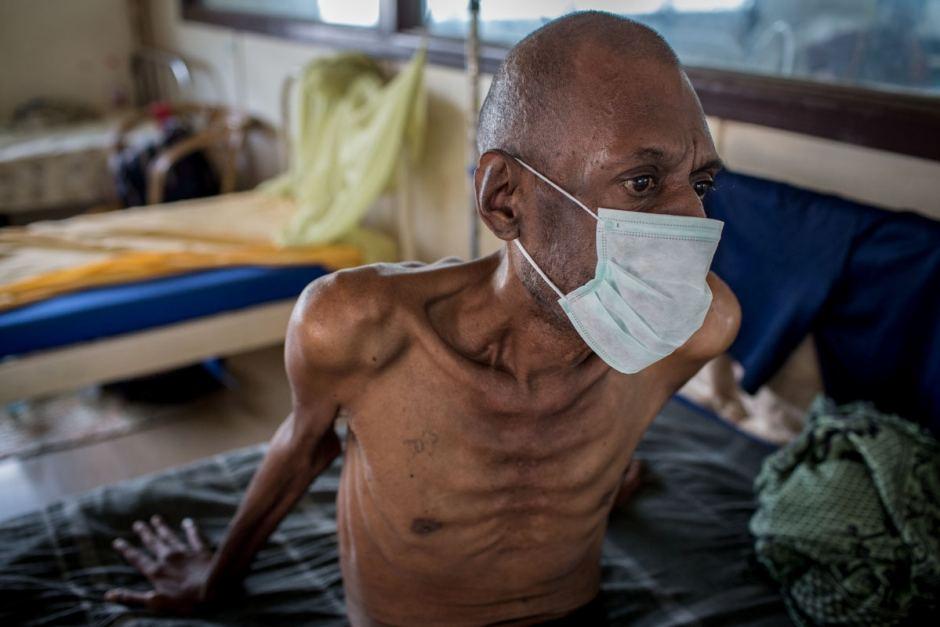 Фото людей больных туберкулезом