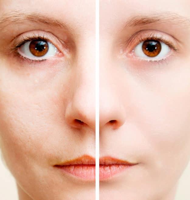 Что такое пилинг лица: плюсы и минусы процедуры