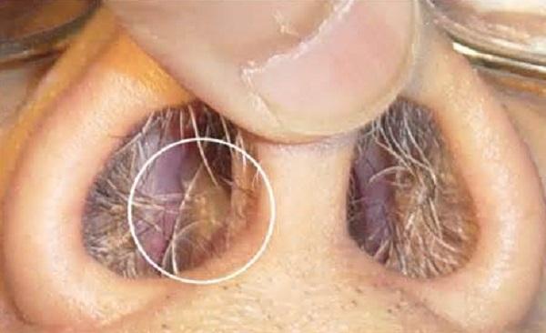Симптомы и лечение этмоидита у взрослых и детей