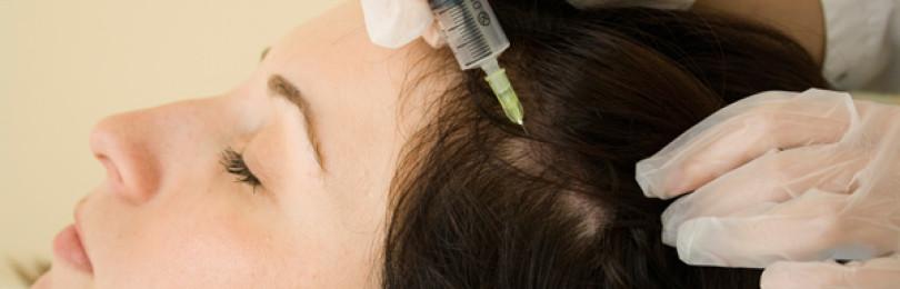 Процедура биоревитализации волос что это такое?