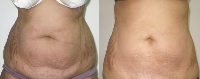 Операция абдоминопластика. Фото до и после