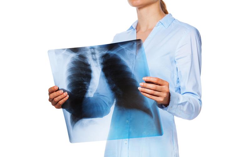 Чем опасен туберкулеза сердца?