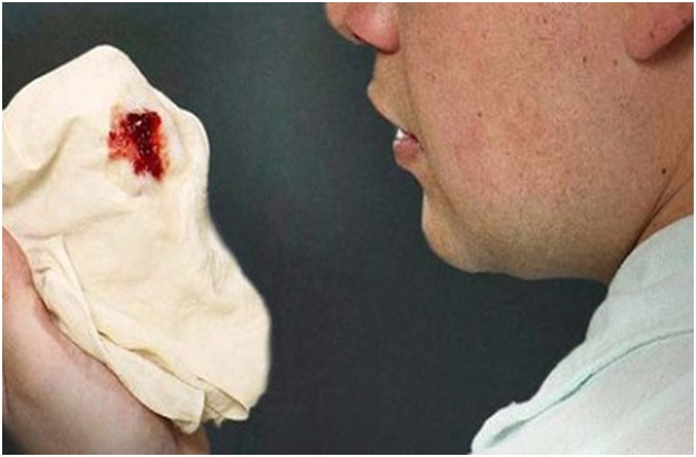 Что делать с кашлем при туберкулезе легких?