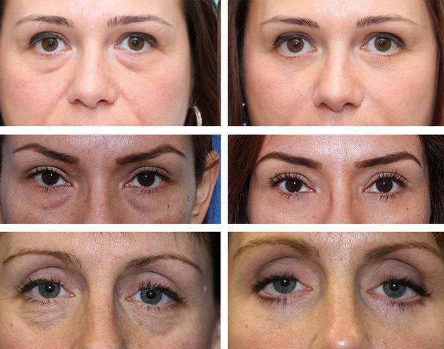 фото до и после биоревитализации глаз
