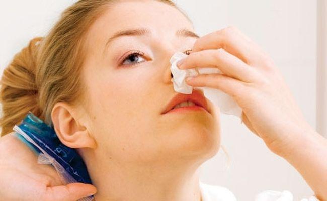 Кровотечение из носа: причины и методы остановки (в т.ч. при беременности)
