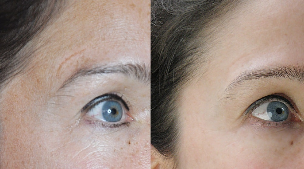 Фото до и после применения дермапена
