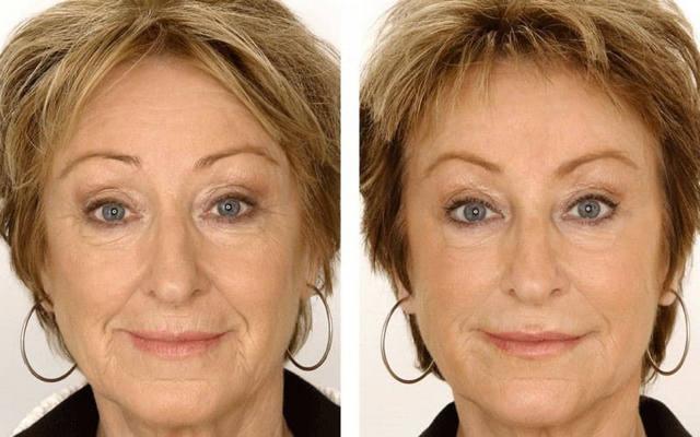 rf-лифтинг фото до и после