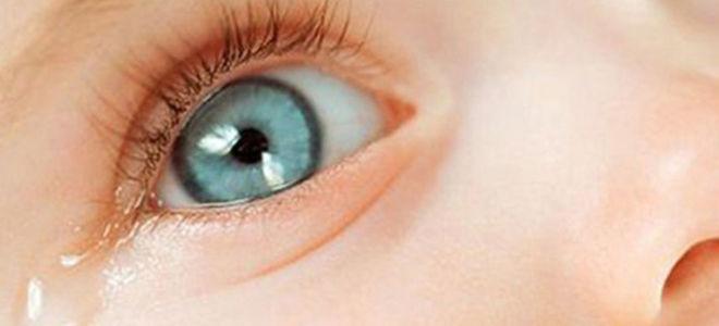 Гноятся глаза у ребенка утром после сна