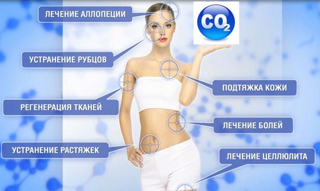 показания для карбокситерапии