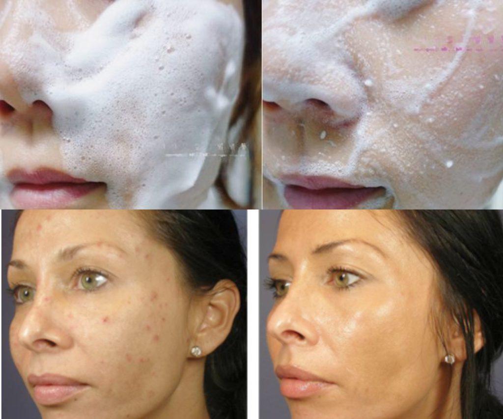 Пилинг-скатка для лица: быстрый и недорогой способ очистить кожу