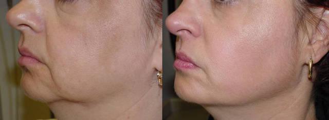 фото до и после карбокситерапии