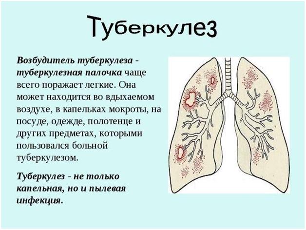 Этиология и патогенез туберкулеза