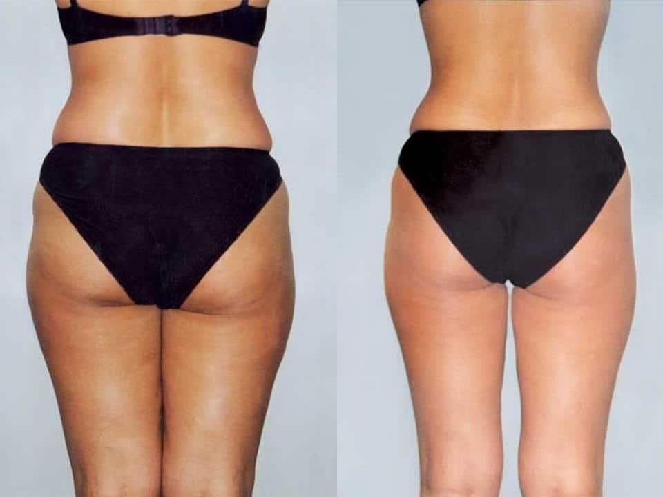 Фото до и после проведения body tite