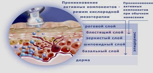 как действует кислородная мезотерапия