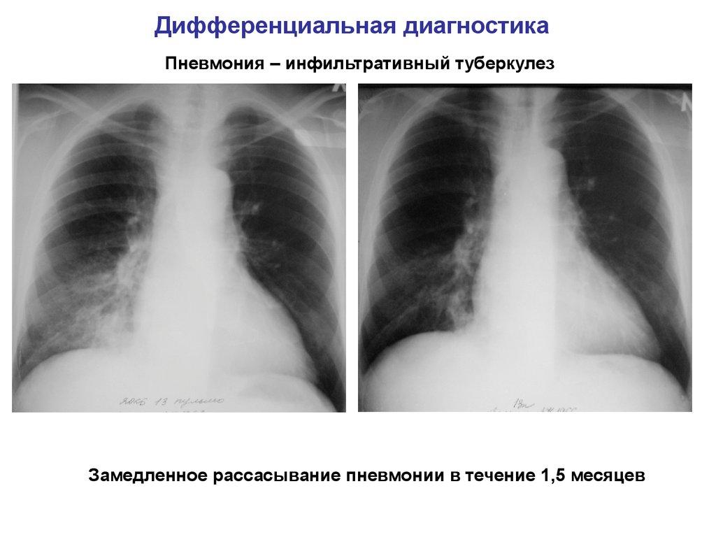 Как проводится дифференциальная диагностика туберкулеза?