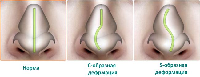 Что нужно знать об искривлении носовой перегородки