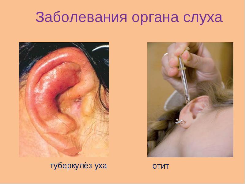 Почему появляется и как лечить туберкулез уха?