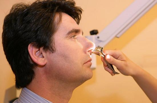 Что такое риноскопия носа?