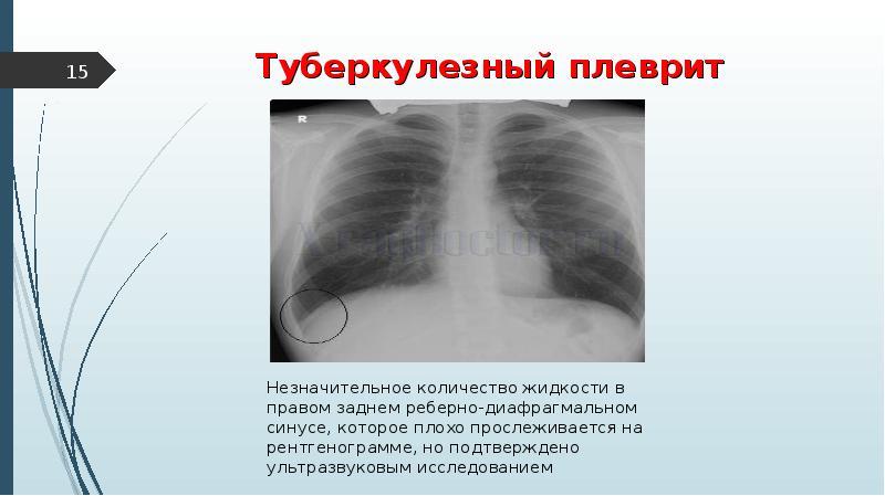 Что такое туберкулезный плеврит?