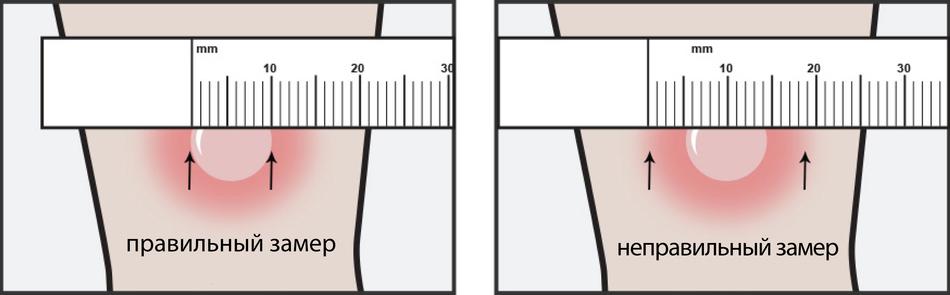 Как измерять Манту и какие показатели при этом могут быть?