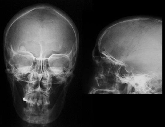 Причины остеомы лобной пазухи и методы лечения