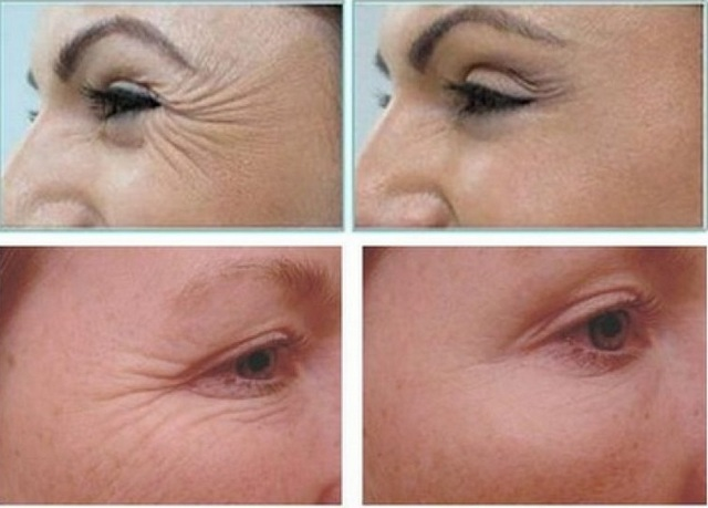 мезотерапия кожи вокруг глаз