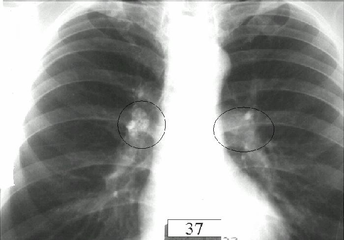 Туберкулезный бронхоаденит причины и прогноз выздоровления