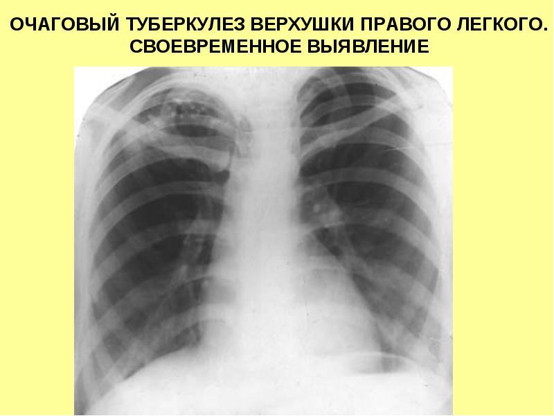 Почему развивается очаговый туберкулез легких?