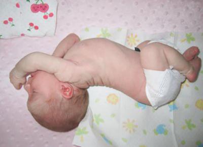 Почему грудничок выгибает спину и запрокидывает голову? Диагностика и мнение Комаровского