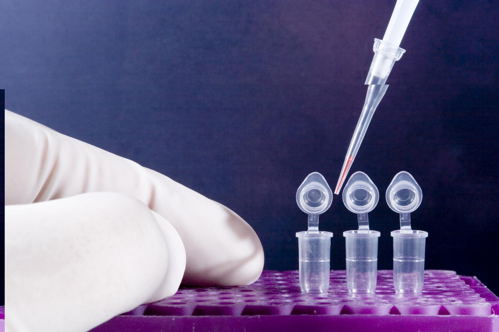 Как проводится ПЦР анализ слюны на туберкулез?