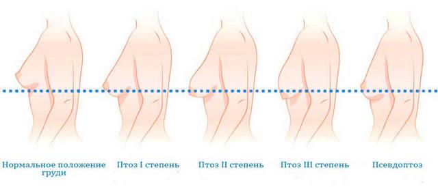 степени птоза молочной железы