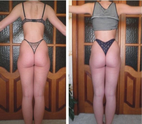 Фото бедер с галифе до и после