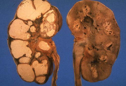 Что такое туберкулез почек?