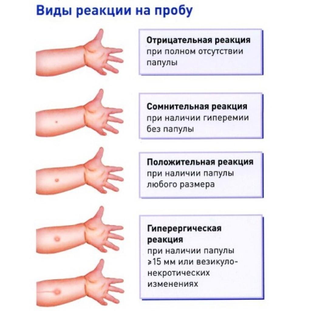 Что такое вираж туберкулиновой пробы?