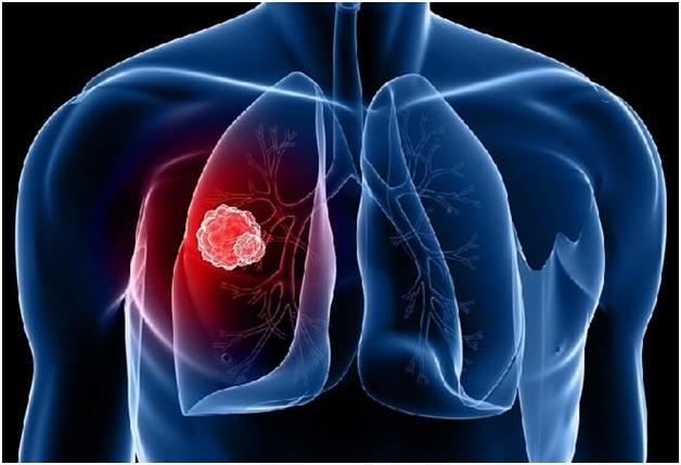 В чем опасность вторичной формы туберкулеза и можно ли ее полностью вылечить?