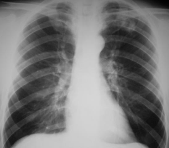 Как и почему развивается инфильтративный туберкулез?